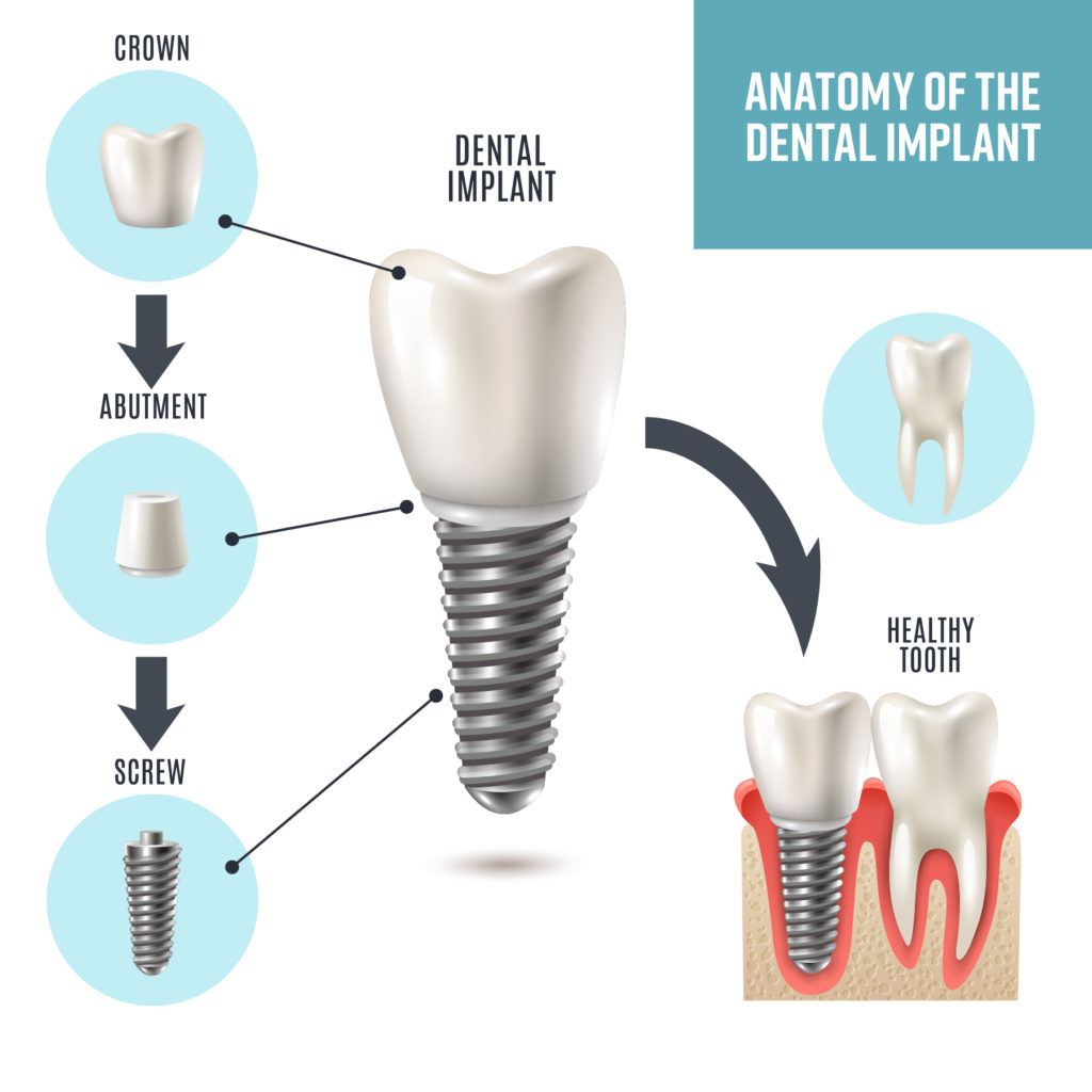 anatomy of the Dental Implants - Walker Family Dental in Richland WA