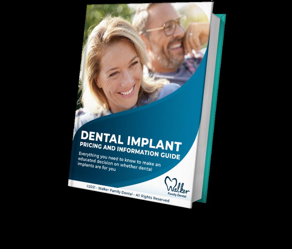 Dental Implants Richland WA - information guide